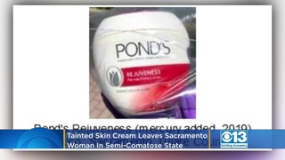 Tainted skin cream from Mexico leaves woman in semi-comatose